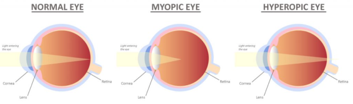 Diagram comparing normal eyes, myopic eyes, and hyperopic eyes